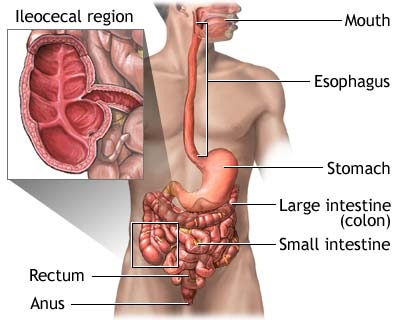 Diagram demonstrating what crohns disease is and what it affects